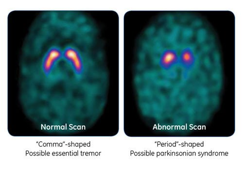 DaTscan image of the brain